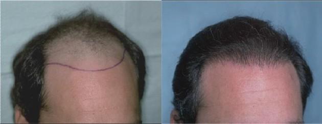 Haare transplantieren kosten